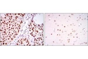 Image no. 4 for anti-PC4 and SFRS1 Interacting Protein 1 (PSIP1) antibody (ABIN1108769)
