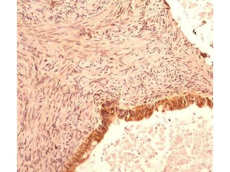 Immunohistochemistry (Paraffin-embedded Sections) (IHC (p)) image for anti-Caspase 1 antibody (CASP1) (ABIN252521)