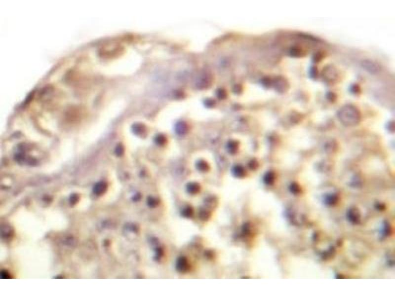 Immunohistochemistry (IHC) image for anti-C-JUN antibody (Jun Proto-Oncogene) (ABIN408116)