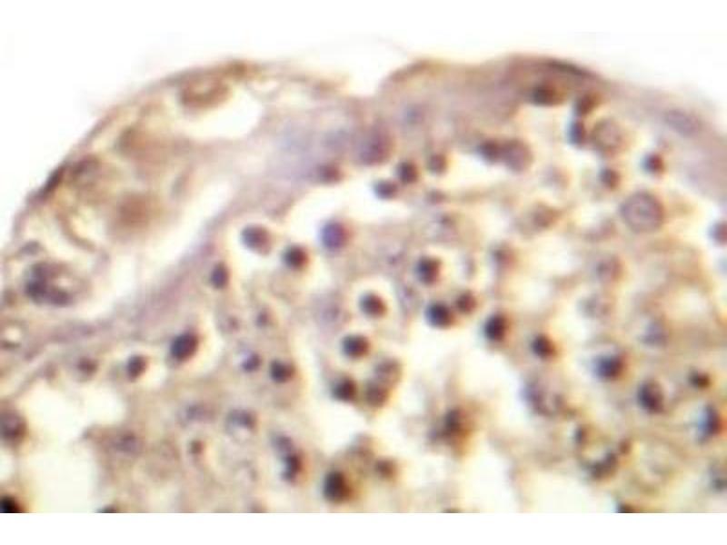 Immunohistochemistry (IHC) image for anti-Jun Proto-Oncogene (JUN) antibody (ABIN408116)