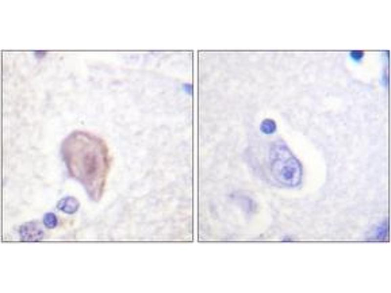 Immunohistochemistry (IHC) image for anti-V-Raf-1 Murine Leukemia Viral Oncogene Homolog 1 (RAF1) (AA 11-60) antibody (ABIN1532586)