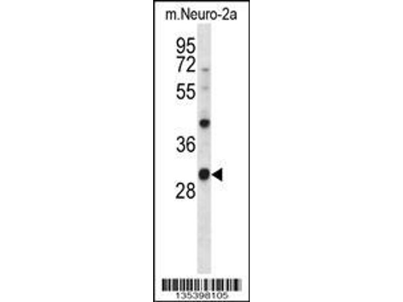 Western Blotting (WB) image for anti-CSNK1A1 antibody (Casein Kinase 1, alpha 1) (C-Term) (ABIN2160365)