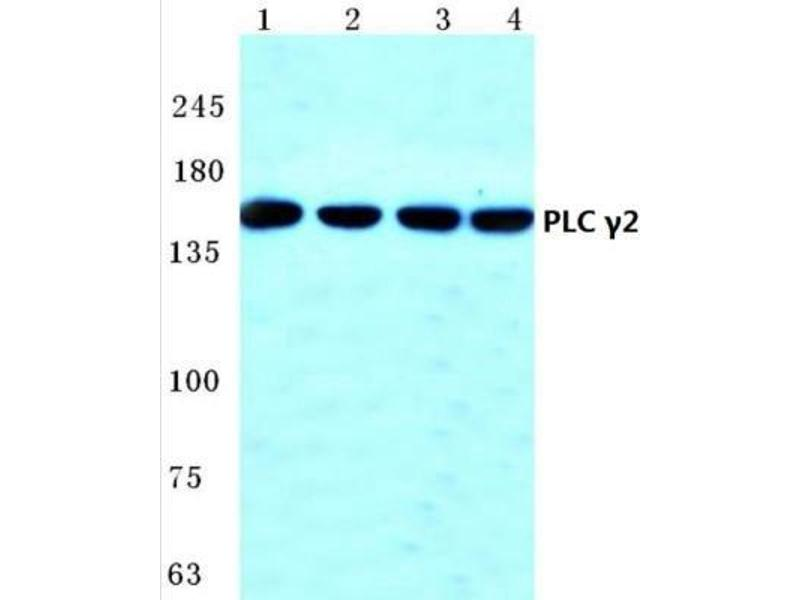 Western Blotting (WB) image for anti-Phospholipase C gamma 2 antibody (PLCG2) (ABIN407912)