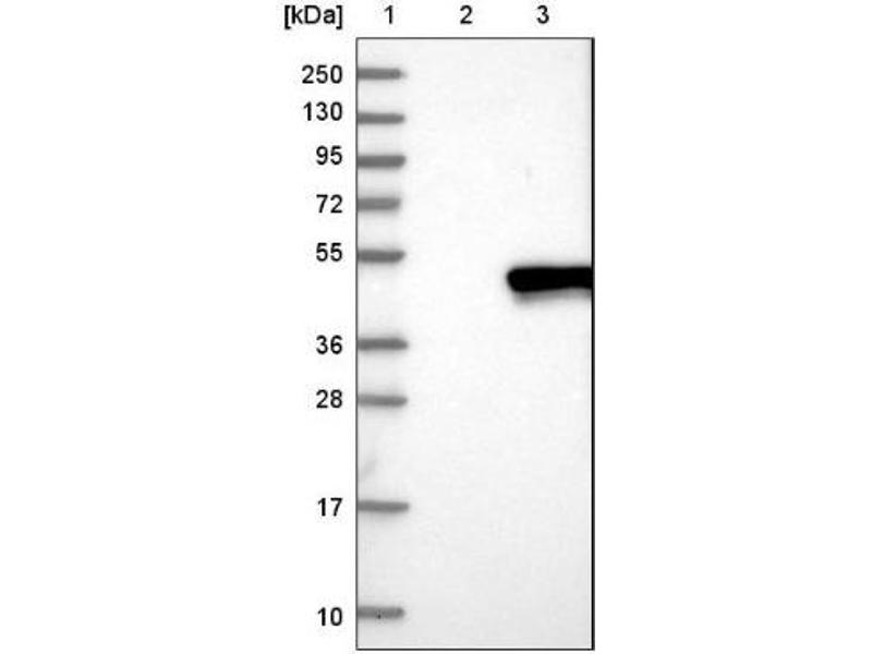 Western Blotting (WB) image for anti-Ras Association (RalGDS/AF-6) Domain Family Member 1 (RASSF1) antibody (ABIN4349433)