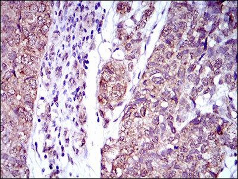 Immunohistochemistry (IHC) image for anti-Interleukin 2 Receptor, alpha (IL2RA) (AA 34-139) antibody (ABIN1845343)