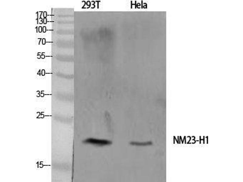 Western Blotting (WB) image for anti-Non-Metastatic Cells 1, Protein (NM23A) Expressed in (NME1) (Internal Region) antibody (ABIN3185922)