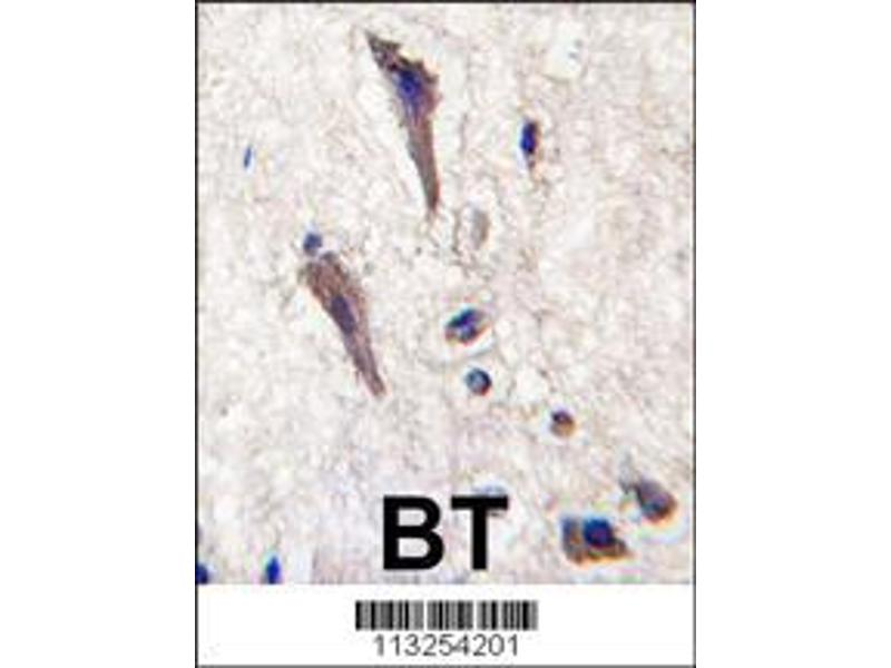 Immunohistochemistry (IHC) image for anti-Sprouty-Related, EVH1 Domain Containing 1 (SPRED1) (AA 44-73), (N-Term) antibody (ABIN388231)