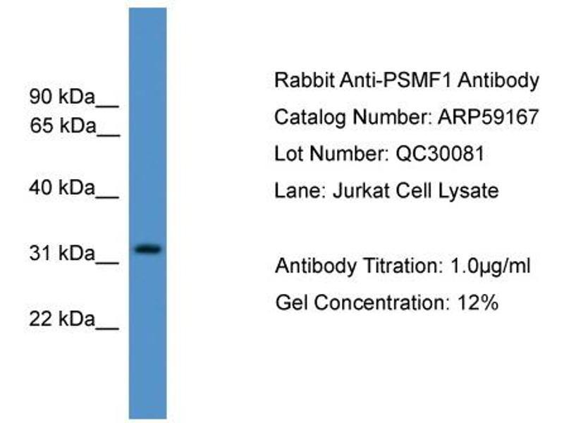 Western Blotting (WB) image for anti-Proteasome (Prosome, Macropain) Inhibitor Subunit 1 (PI31) (PSMF1) (Middle Region) antibody (ABIN2787963)