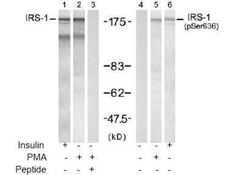 image for anti-Insulin Receptor Substrate 1 (IRS1) (pSer636) antibody (ABIN196979)