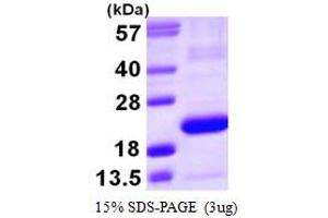 Image no. 1 for Prostaglandin D2 Synthase (PTGDS) (AA 23-190) protein (His tag) (ABIN667417)