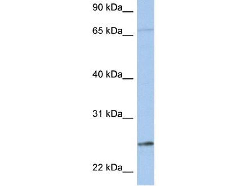 Western Blotting (WB) image for anti-Kallikrein 6 (KLK6) (N-Term) antibody (ABIN2778179)