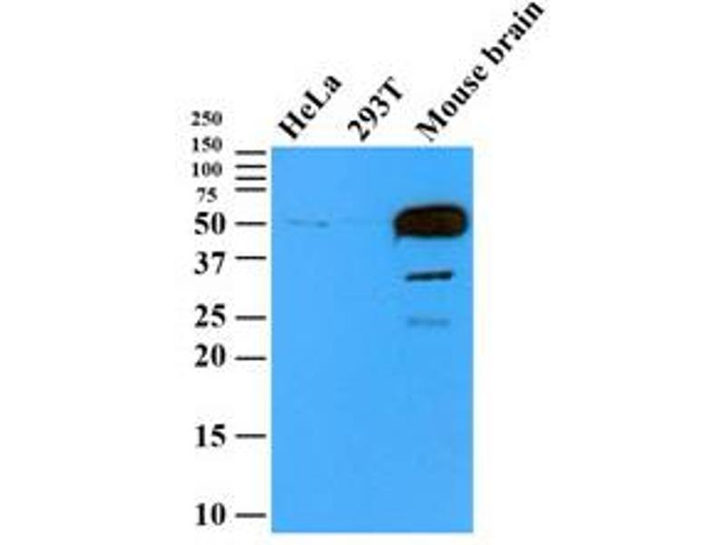 Western Blotting (WB) image for anti-Tubulin, beta 2B (TUBB2B) antibody (ABIN567611)