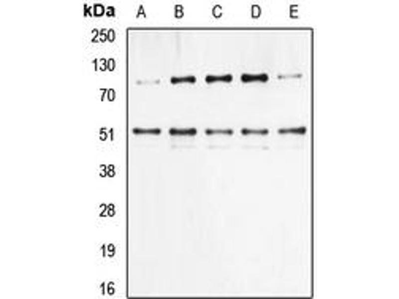 Western Blotting (WB) image for anti-Nuclear Factor of kappa Light Polypeptide Gene Enhancer in B-Cells 1 (NFKB1) (pSer337) antibody (ABIN2706676)