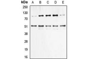 Western Blotting (WB) image for anti-NFKB1 antibody (Nuclear Factor of kappa Light Polypeptide Gene Enhancer in B-Cells 1) (pSer337) (ABIN2706676)