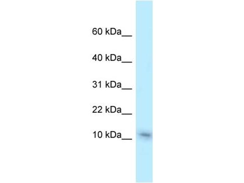 Western Blotting (WB) image for anti-Non-Metastatic Cells 1, Protein (NM23A) Expressed in (NME1) (C-Term) antibody (ABIN2780437)