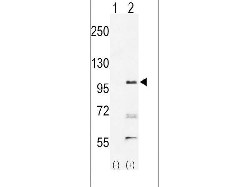 Western Blotting (WB) image for anti-EPH Receptor A2 antibody (EPHA2) (N-Term) (ABIN2160947)