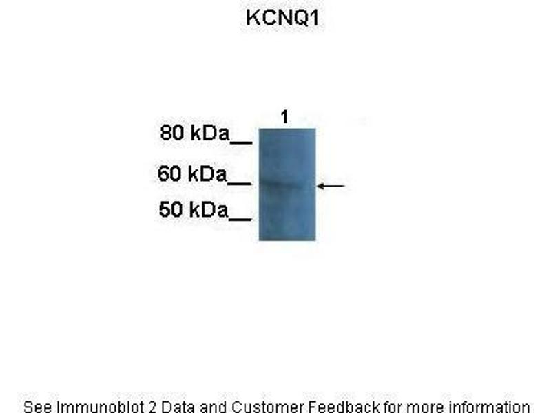 Western Blotting (WB) image for anti-Potassium Voltage-Gated Channel, KQT-Like Subfamily, Member 1 (KCNQ1) (N-Term) antibody (ABIN2776085)