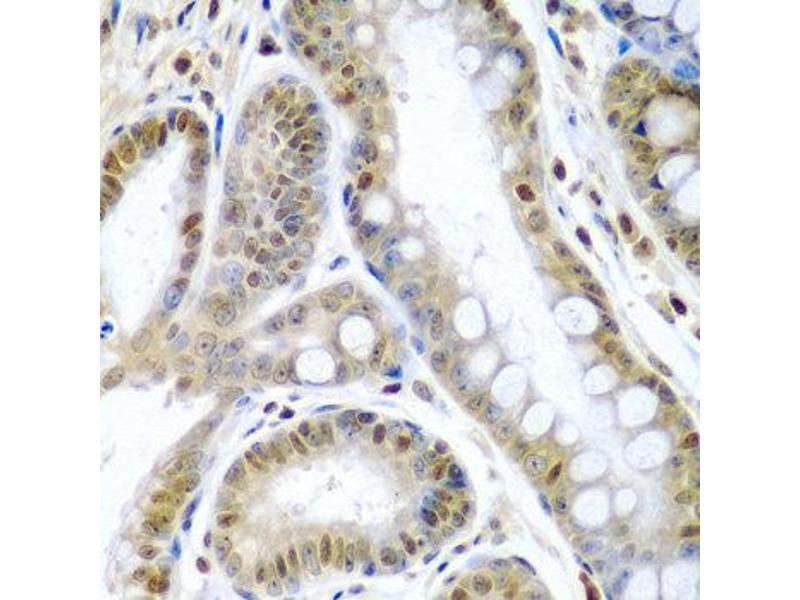 Immunohistochemistry (IHC) image for anti-TNFSF10 Antikörper (Tumor Necrosis Factor (Ligand) Superfamily, Member 10) (ABIN1875140)
