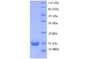 Image no. 1 for Ribosomal Protein L31 (RPL31) (AA 1-125), (full length) protein (His tag) (ABIN1046448)