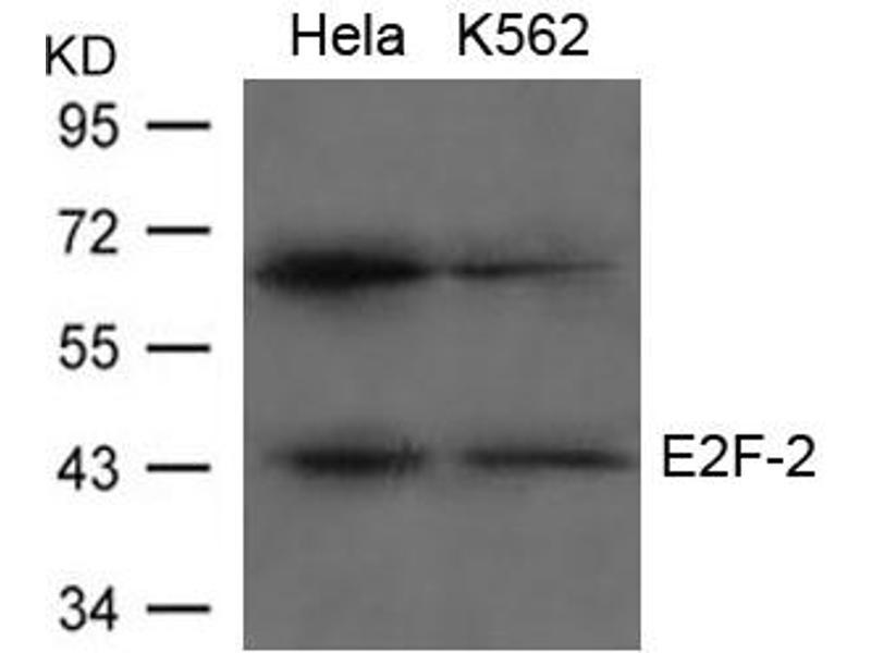 Image no. 1 for anti-E2F Transcription Factor 2 (E2F2) (AA 425-429) antibody (ABIN6267784)