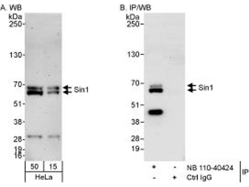 Western Blotting (WB) image for anti-Mitogen-Activated Protein Kinase Associated Protein 1 (MAPKAP1) (C-Term) antibody (ABIN258134)