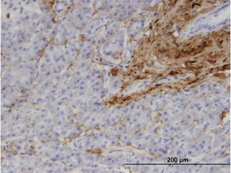 Immunostaining (ISt) image for anti-Collagen, Type I, alpha 1 (COL1A1) (AA 1021-1108), (partial) antibody (ABIN514511)