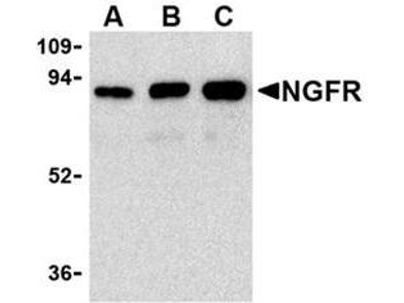 image for anti-Nerve Growth Factor Receptor (NGFR) antibody (ABIN318704)