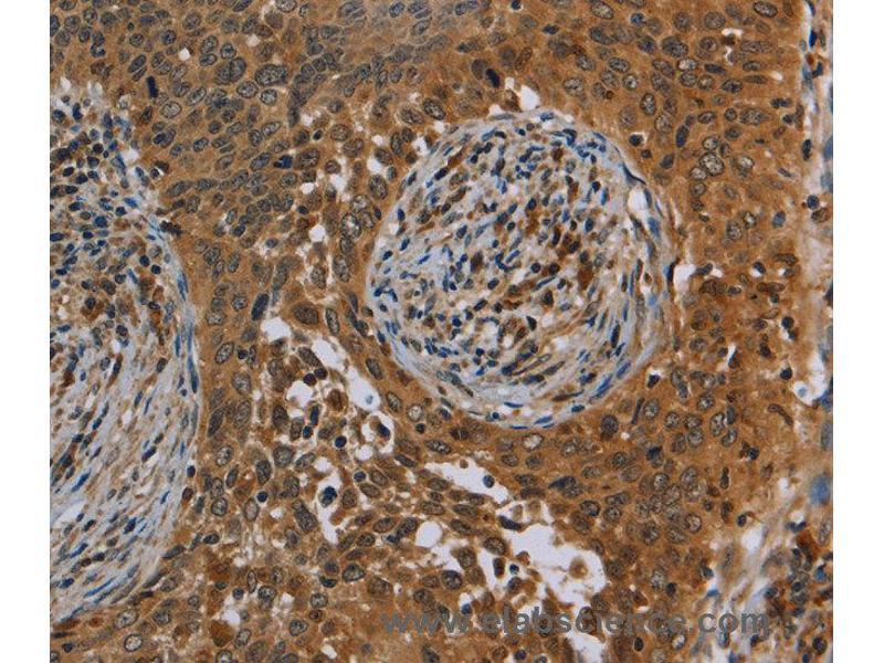 Immunohistochemistry (IHC) image for anti-Oncostatin M (OSM) antibody (ABIN2435118)