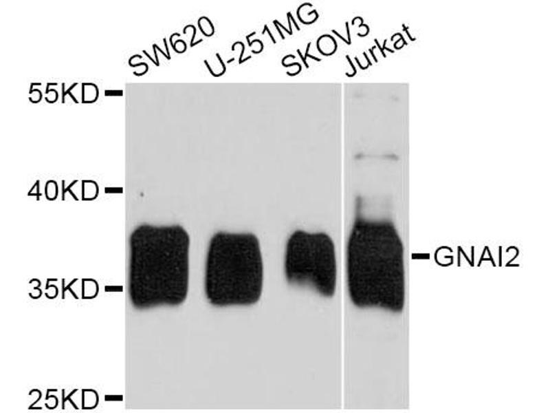 Western Blotting (WB) image for anti-Guanine Nucleotide Binding Protein (G Protein), alpha Inhibiting Activity Polypeptide 2 (GNAI2) antibody (ABIN2736843)