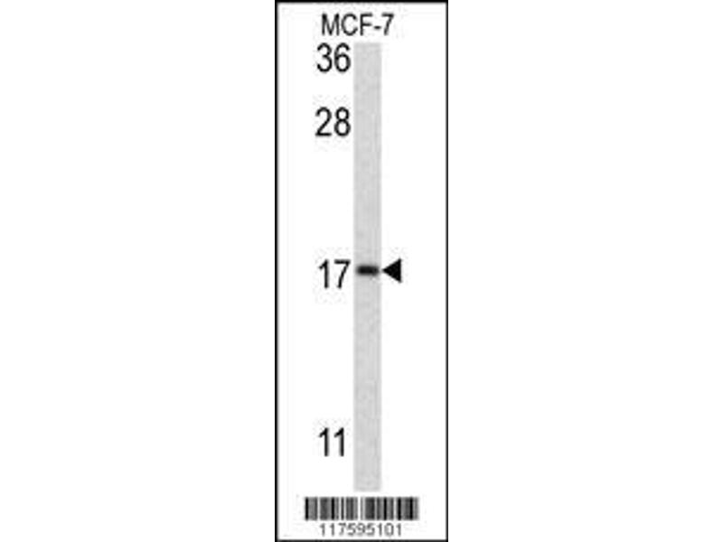 Western Blotting (WB) image for anti-APG8b (Center), (Thr93), (Tyr99) antibody (ABIN388476)