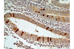 Immunohistochemistry (Paraffin-embedded Sections) (IHC (p)) image for anti-Forkhead Box O1 (FOXO1) antibody (ABIN4312371)