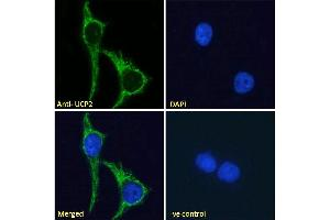 Image no. 5 for anti-Uncoupling Protein 2 (Mitochondrial, Proton Carrier) (UCP2) (Internal Region) antibody (ABIN5539644)