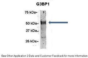 Image no. 4 for anti-GTPase Activating Protein (SH3 Domain) Binding Protein 1 (G3BP1) (N-Term) antibody (ABIN2780222)