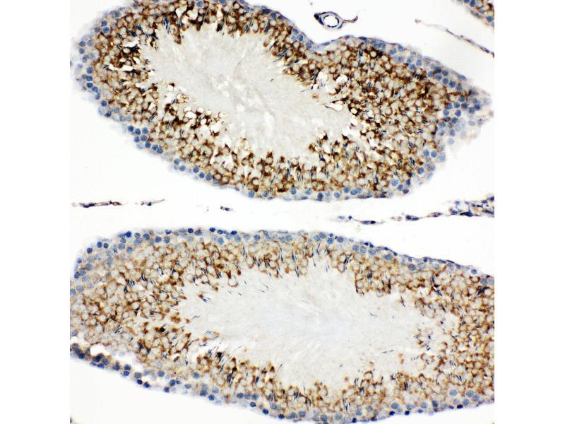 Immunohistochemistry (IHC) image for anti-Hepatitis A Virus Cellular Receptor 1 (HAVCR1) (AA 289-307), (C-Term) antibody (ABIN3044229)