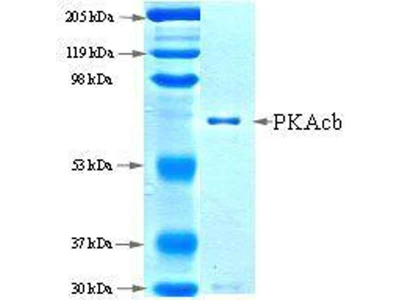 SDS-PAGE (SDS) image for PKAcb (Active) protein (ABIN411951)