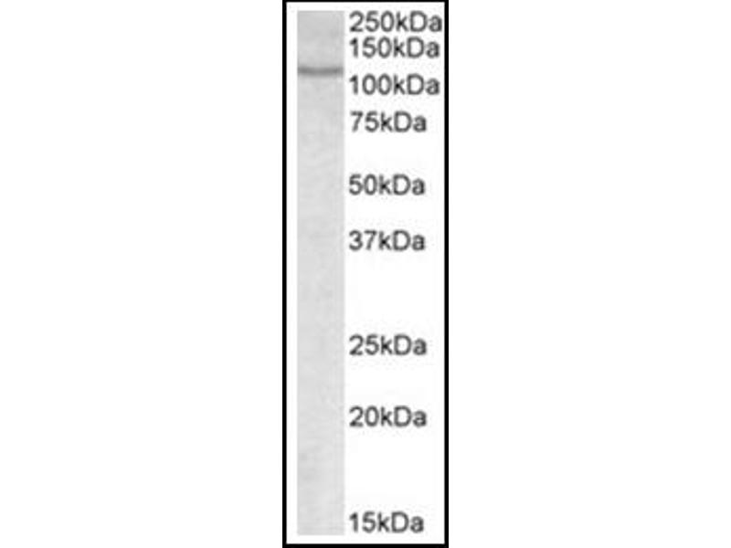 image for anti-NFAT1 antibody (Nuclear Factor of Activated T-Cells, Cytoplasmic, Calcineurin-Dependent 2) (Internal Region) (ABIN453985)