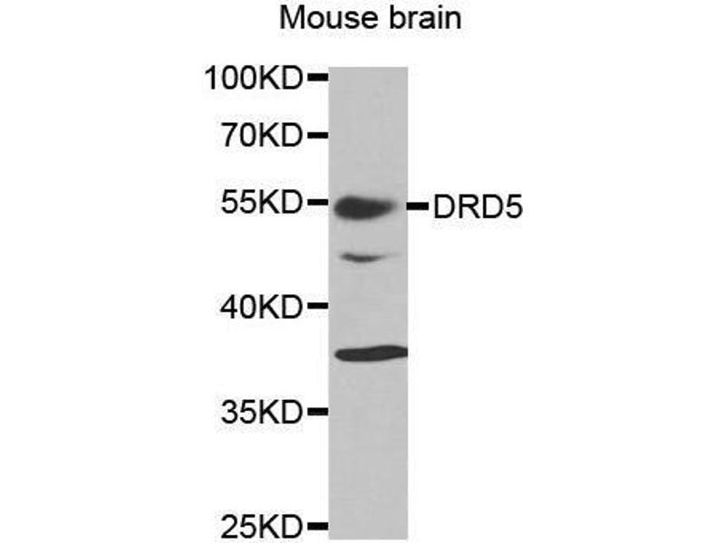 Western Blotting (WB) image for anti-Dopamine Receptor D5 (DRD5) antibody (ABIN3022433)