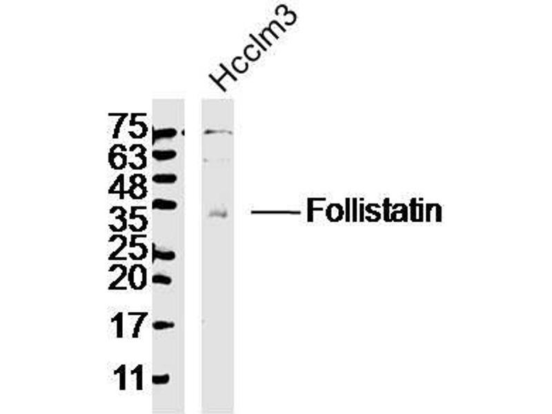 Western Blotting (WB) image for anti-Follistatin (FST) (AA 80-130) antibody (ABIN734258)