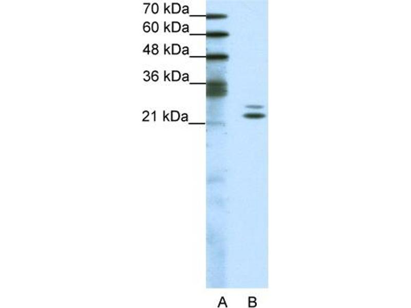 Western Blotting (WB) image for anti-BUD31 Homolog (S. Cerevisiae) (BUD31) (Middle Region) antibody (ABIN183649)