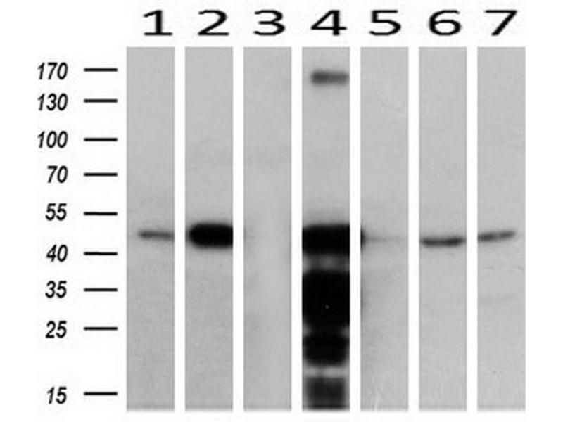 Image no. 4 for anti-Acetyl-CoA Acyltransferase 2 (ACAA2) antibody (ABIN2715630)