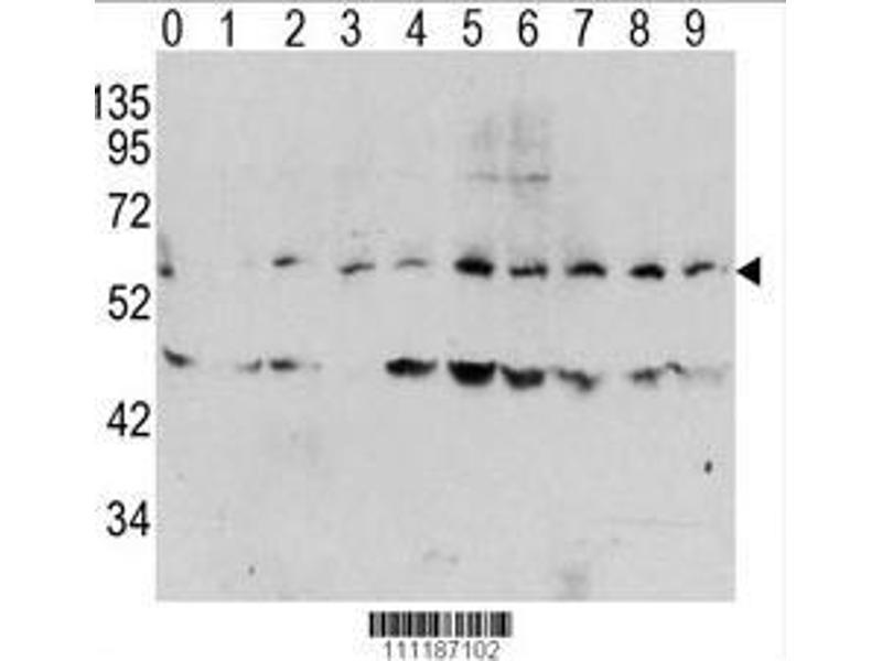 Western Blotting (WB) image for anti-C-MYC antibody (V-Myc Myelocytomatosis Viral Oncogene Homolog (Avian)) (pThr58) (ABIN389723)