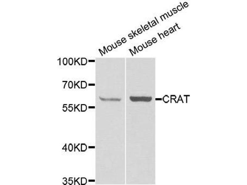 Image no. 1 for anti-Carnitine O-Acetyltransferase (CRAT) antibody (ABIN2561991)