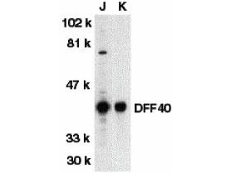 Western Blotting (WB) image for anti-DFFB antibody (DNA Fragmentation Factor, 40kDa, beta Polypeptide (Caspase-Activated DNase)) (AA 3-18) (ABIN2156248)