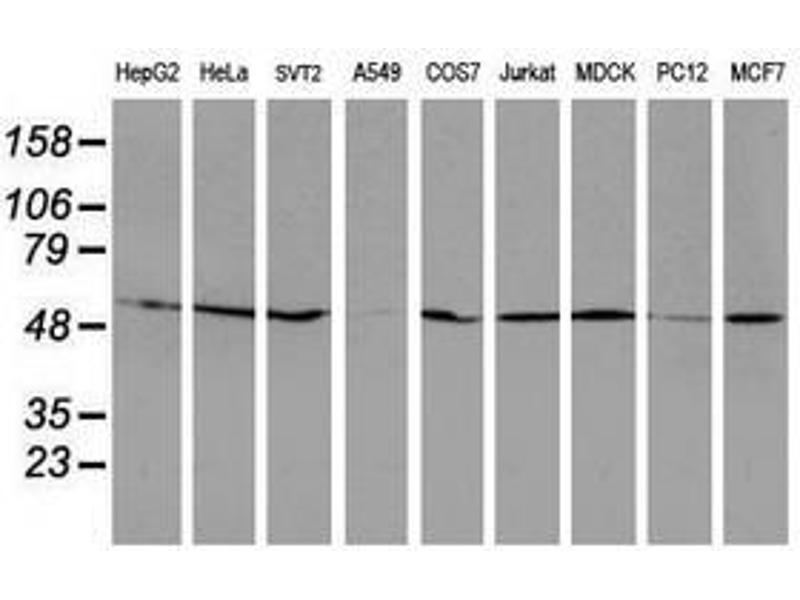 image for anti-RuvB-Like 2 (E. Coli) (RUVBL2) (AA 113-370) antibody (ABIN1490850)