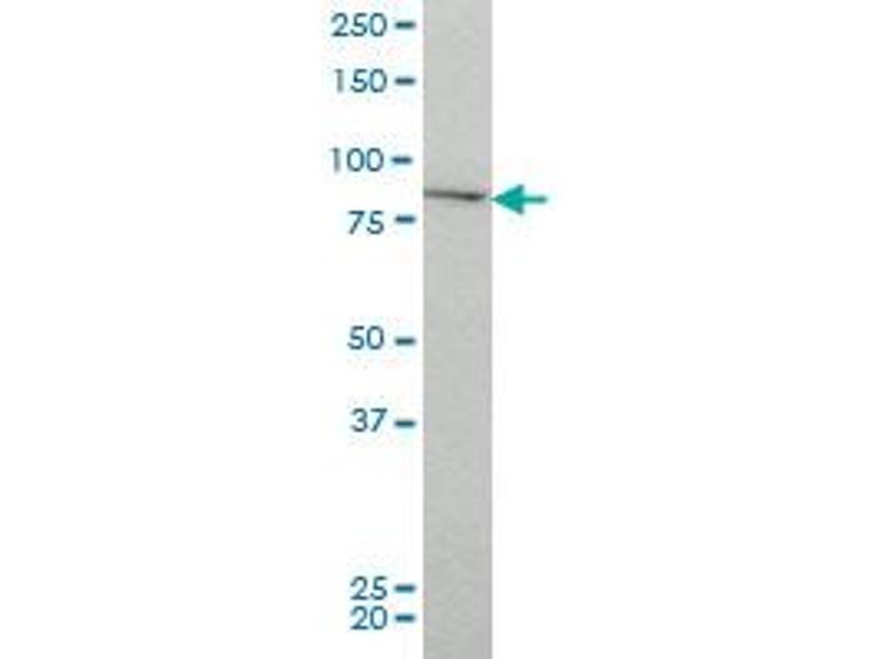 Western Blotting (WB) image for anti-CHUK antibody (conserved Helix-Loop-Helix Ubiquitous Kinase) (AA 646-745) (ABIN560378)