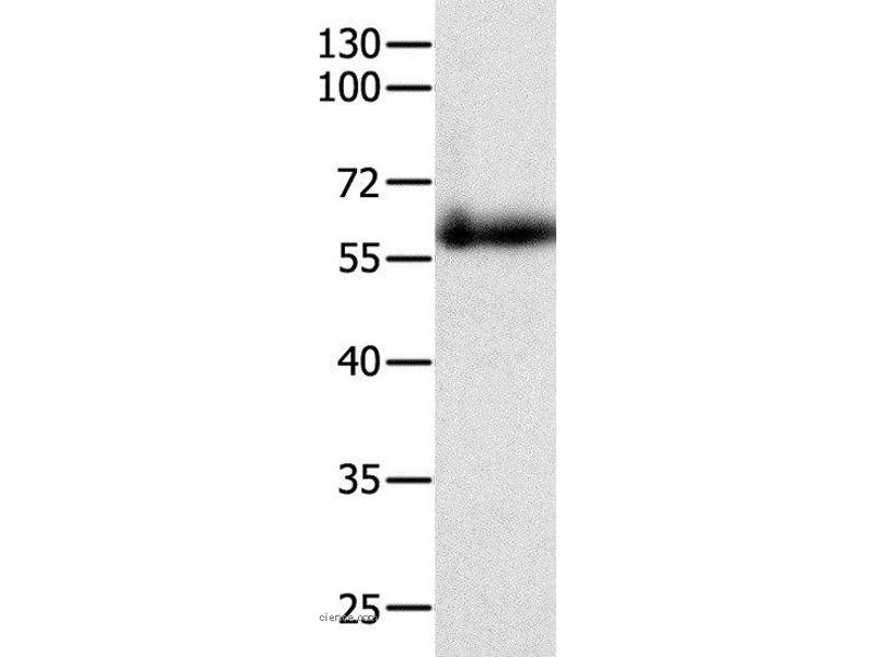 Western Blotting (WB) image for anti-P21-Activated Kinase 4 (PAK4) antibody (ABIN2428545)