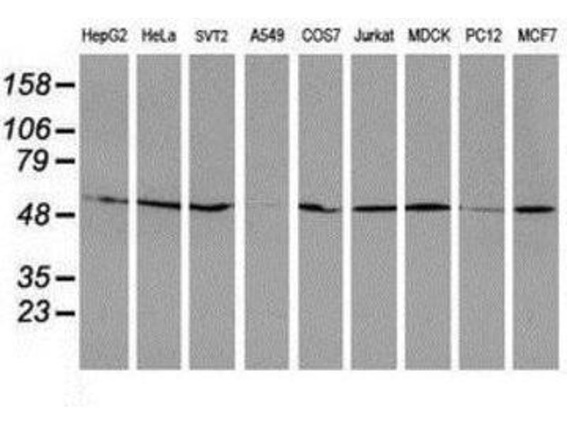 Western Blotting (WB) image for anti-RuvB-Like 2 (E. Coli) (RUVBL2) antibody (ABIN4351487)
