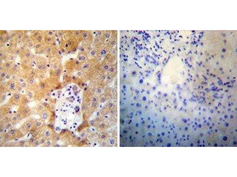 Immunohistochemistry (Paraffin-embedded Sections) (IHC (p)) image for anti-ATPase, Ca++ Transporting, Cardiac Muscle, Slow Twitch 2 (ATP2A2) antibody (ABIN4352749)