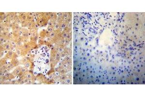 Immunohistochemistry (Paraffin-embedded Sections) (IHC (p)) image for anti-ATPase, Ca++ Transporting, Cardiac Muscle, Slow Twitch 2 (ATP2A2) antibody (ABIN152736)