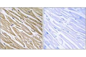 Image no. 1 for anti-Chromosome 5 Open Reading Frame 13 (C5orf13) (AA 13-62) antibody (ABIN1535102)